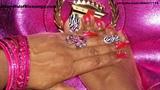 Metallic Pink & Zebra Nails & Toes pic1