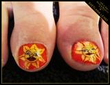 Sun burn in toes
