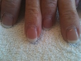 3 weeks after with Shellac 2