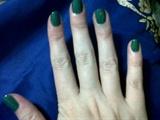Green gable
