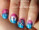 Pregnancy&InfantLoss