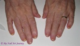 Both Hands Showing Damage From Chemo