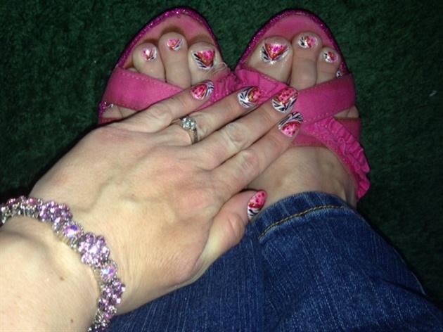 Bubblegum Zebra--Toes