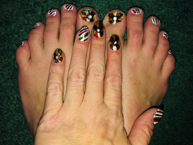 Christmas Bows and Candy Canes--Toes