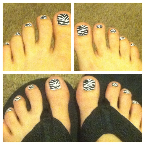 Zebra striped toenails