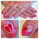Heart 2 Heart