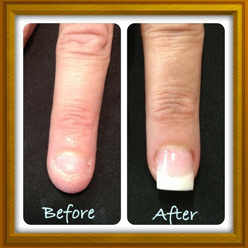 Nail Bitter- before & after