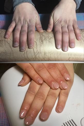 Prima E Dopo 💅🎀