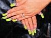 Neon Yellow Bling