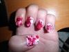 Bloody shot nails.