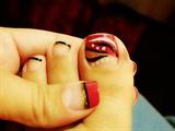 My toe! ( ړײ)