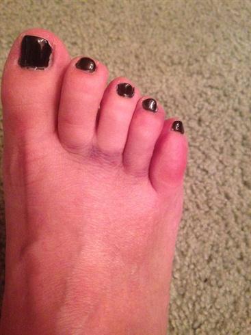Black Shellac bruised toes