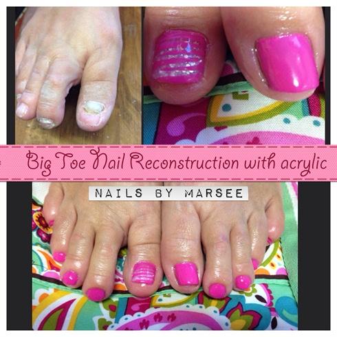 Acrylic toe nail