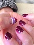 Stripes Accent Thumb