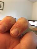Bad Skin Rash