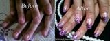 nail biting clients