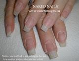 Before - NO Nail Damage