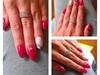 Korekcija izlivenih noktiju