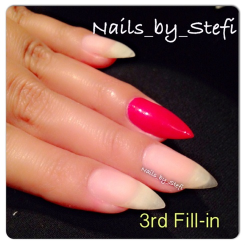 Gel fill-in