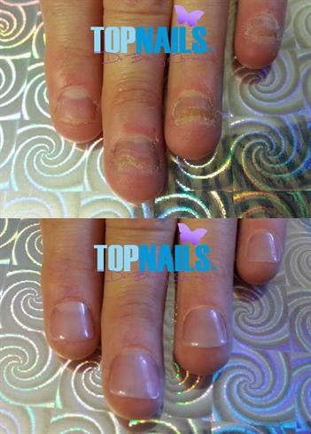 Rebuild your nail biters) 💅 🌺