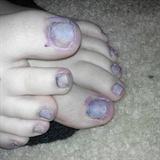Walking dead toes